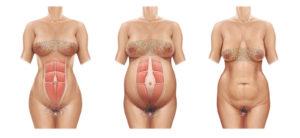 Top-10-Early-Pregnancy-Symptoms-4